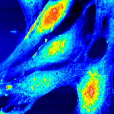 Fibroblastes embryonnaires, mode oscillant, 80 µm